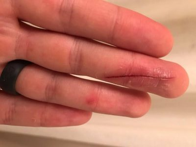 How to be a Germ Freak in the Medical Field with a Paper Cut